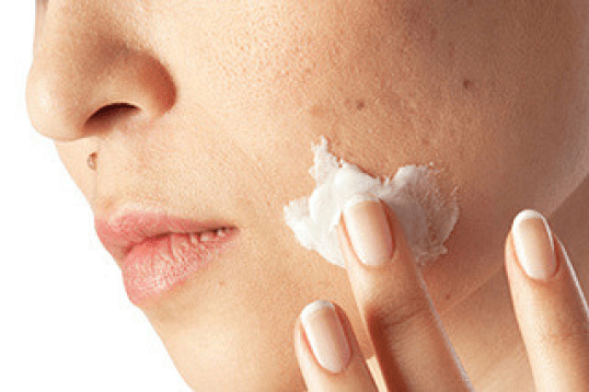 Using Retinoids to Remove Acne Scars