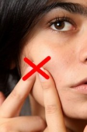 Squeezing is the main cause of acne scars.