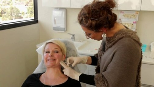 Fade acne scars with fillers