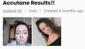 Accutane great results