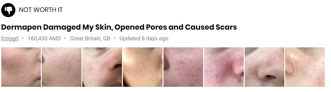 dermapen-for-acne-scars-before-after-fail
