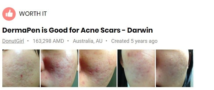 dermapen-for-acne-scars-before-after-photos