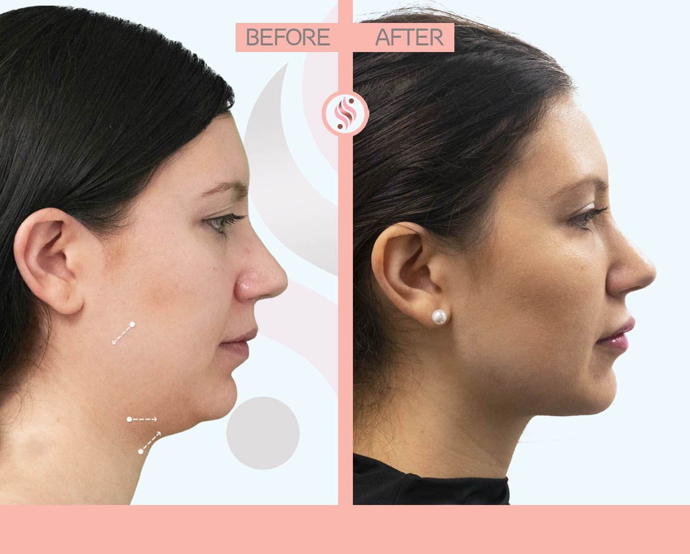Jawline, Double Chin treatment