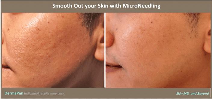 DermaPen Plano TX  MicroNeedling Frisco TX  Skin