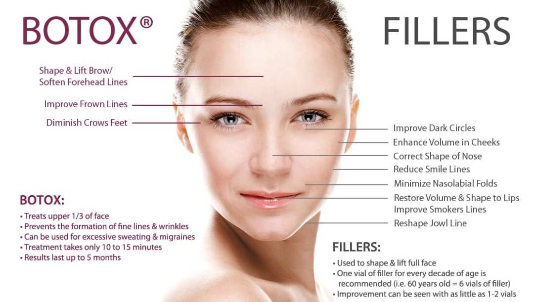 botox injection sites