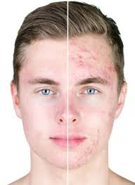 Accutane For Severe Acne Treatment