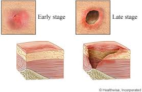 Bed Sores Early and Late Stages
