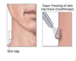 liquid nitrogen for skin growths