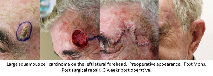 Skin Cancer Surgery  Skin Cancer Surgery  General Dermatology  Mohs Surgery  Botox
