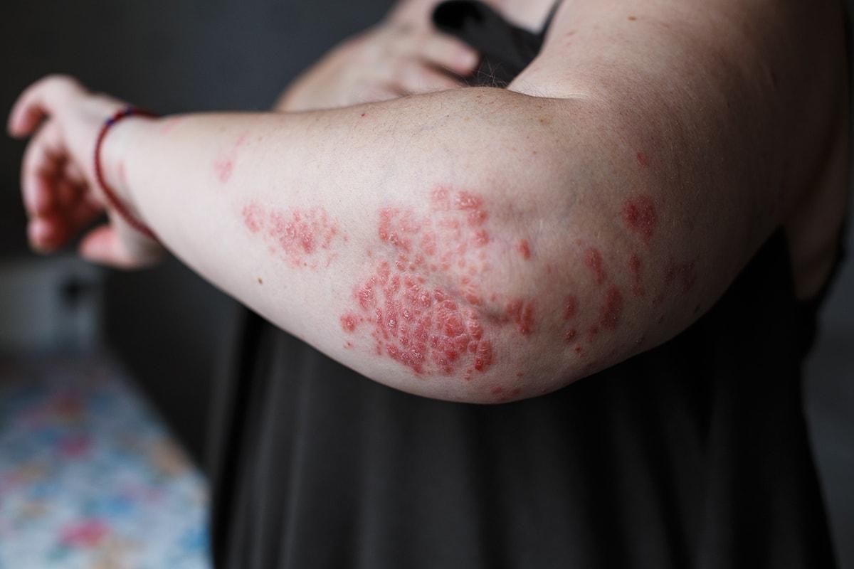 Psoriasis - Symptoms Causes Treatment and Photos