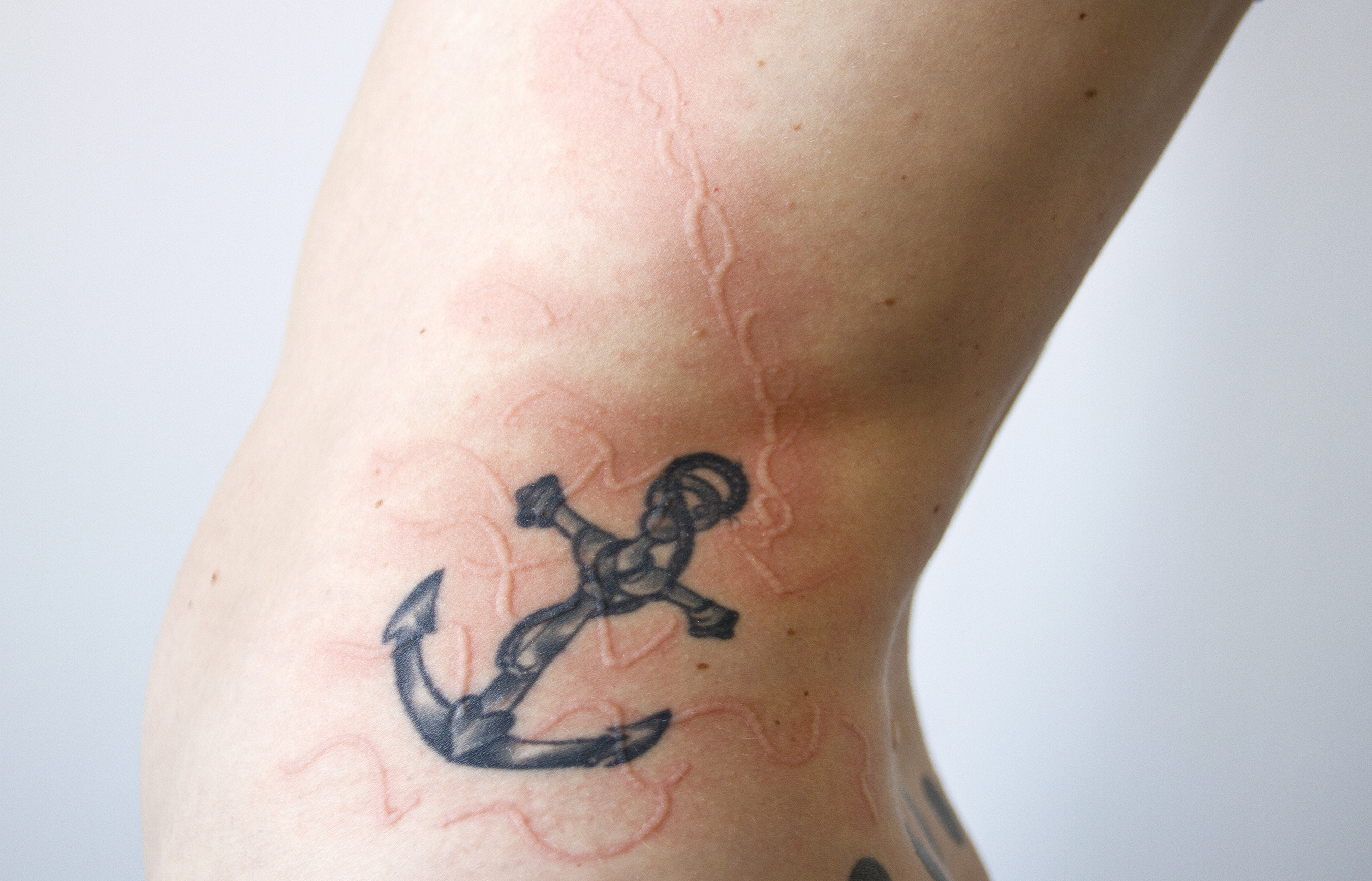 Personal Adornment Can People With Dermatographia Get Tattoos