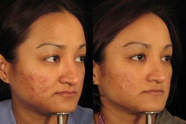 dermaroller treatment results