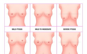 Breast Lift Augmentaion