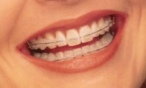 braces 06