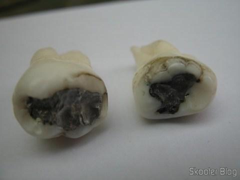 Finados terceiros molares