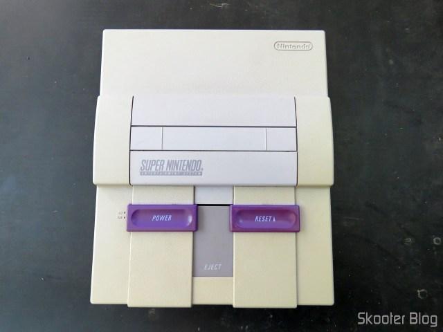 My Super Nintendo before surgery.