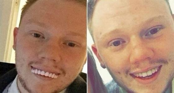 شاب اشترى طقم أسنان للحصول على ابتسامة جذابة فتحول لوجه مضحك