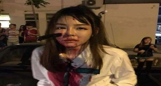 بالفيديو.. لص يغرس سكينا في وجه فتاة لسرقة حقيبتها
