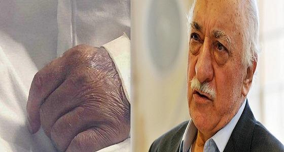 """صحفي تركي يستخدم """" يد مواطن سعودي """" وينسبها للمعارض فتح الله كولن!"""