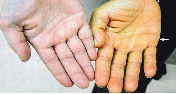 أحذروا .. إصفرار الجلد يشير للإصابة بأمراض الكبد