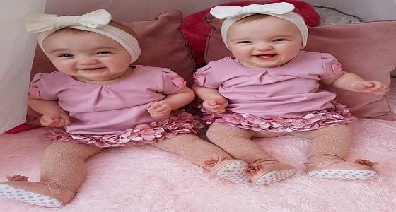بالصور .. جراحة ليزر من داخل الرحم تحقق معجزة لطفلتين