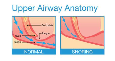 Uvulopalatopharyngoplasty UPPP for Sleep Apnea  Sleep
