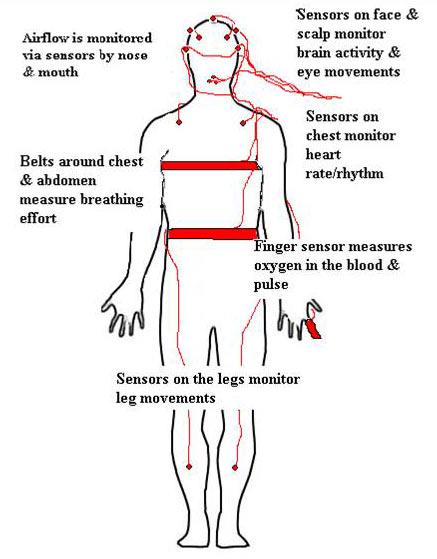 The Polysomnogram Test for Sleep Apnea