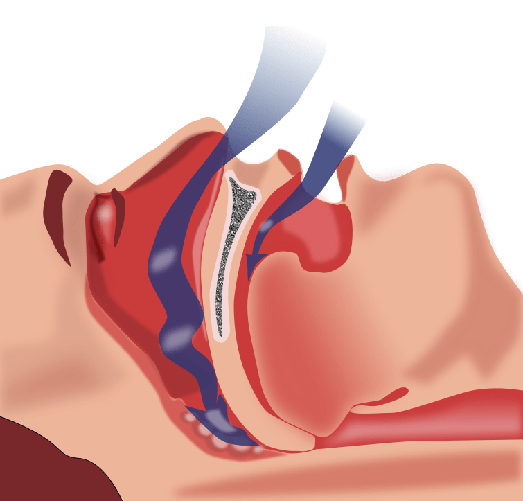 Picture of obstructive sleep apnea