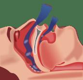 Picture of obstructive sleep apnea