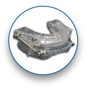 SUAD sleep apnea oral appliance device