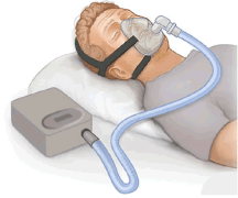 Why Do I Need A CPAP -