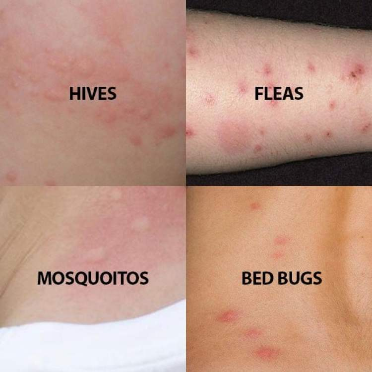 Comparison Bed Bugs from others