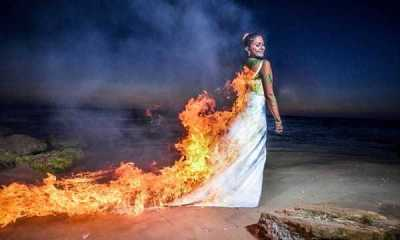 The bride whose dress was set on fire