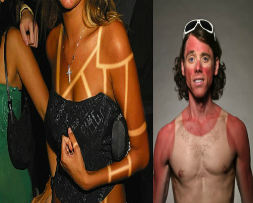 Crossing The Line The Horrific Side Of A Summer Tan
