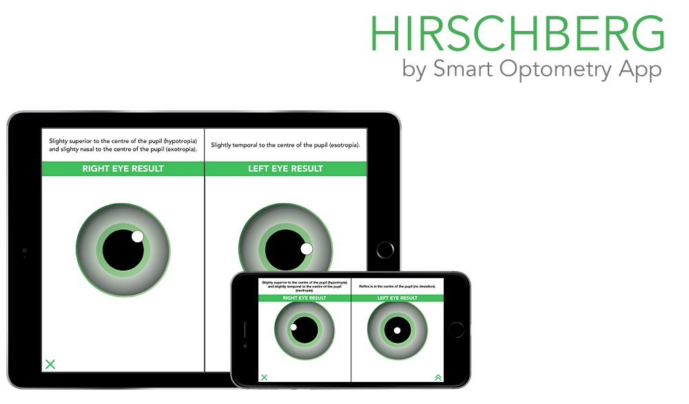 https://i0.wp.com/www.smart-optometry.com/wp-content/uploads/2016/08/hirschberg_preview_web-1000x587.png?resize=1000%2C587