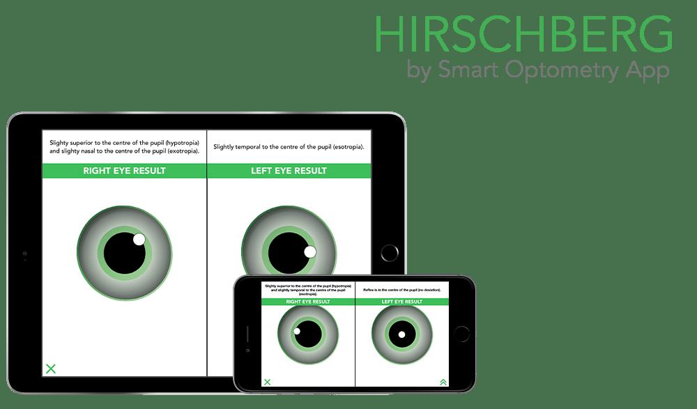 https://i0.wp.com/www.smart-optometry.com/wp-content/uploads/2016/08/hirschberg_preview_web.png?resize=1000%2C587&ssl=1
