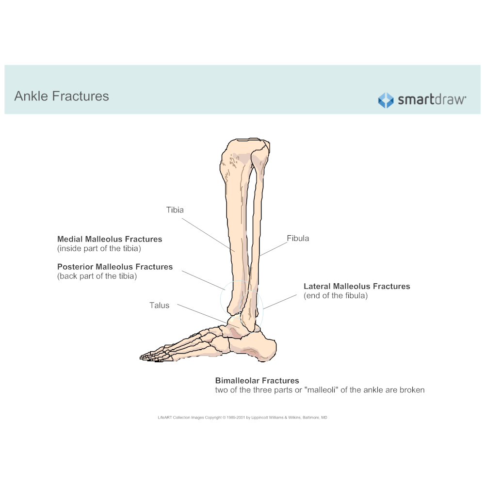 text in this example ankle fractures fibula tibia [ 1000 x 1000 Pixel ]