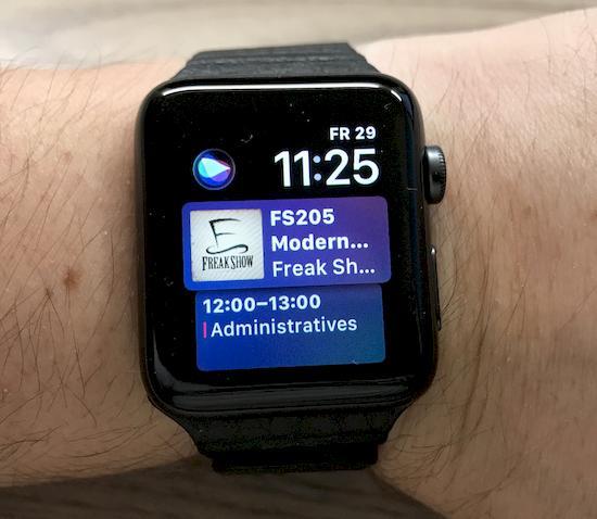 Endlich eine eigene Apple Watch