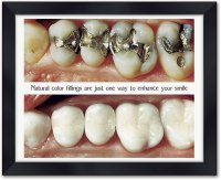 Tooth-Colored Fillings Wall Art   SmartPractice Dental