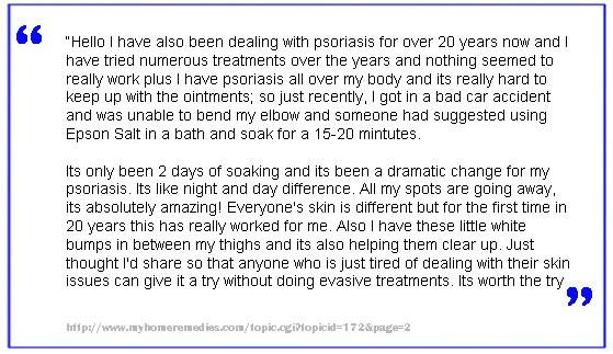 Epsom Salt Psoriasis Treatment 2