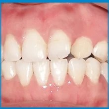 Complete cleft closure after rhBMP-2 surgery and orthodontic teeth alignment
