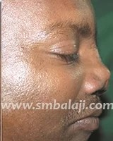 Nasal defect Side View before treatment