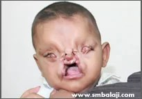 Tessier cleft deformity-before surgery