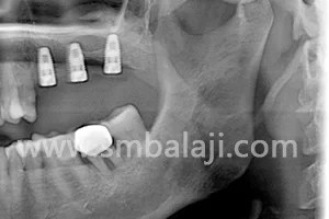 X-ray showing dental implants