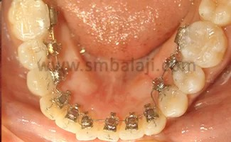 Lingual braces for the lower teeth