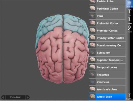 3D Brain03