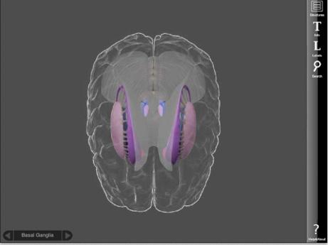 3D Brain05