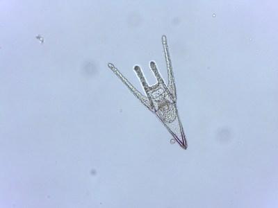 Larve d'oursin, Paracentrotus lividus, bien développée