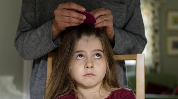 Not picky: Head lice along with bedbugs are becoming tough to exterminate.