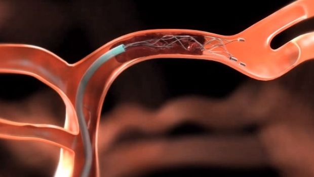A close-up of the new device used to remove blood clots.